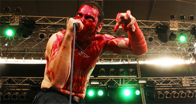 HAEMORRHAGE
